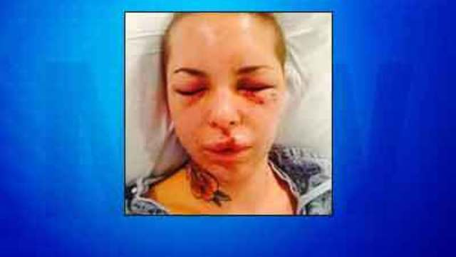 Thousands raised to help woman allegedly beaten by War Machine