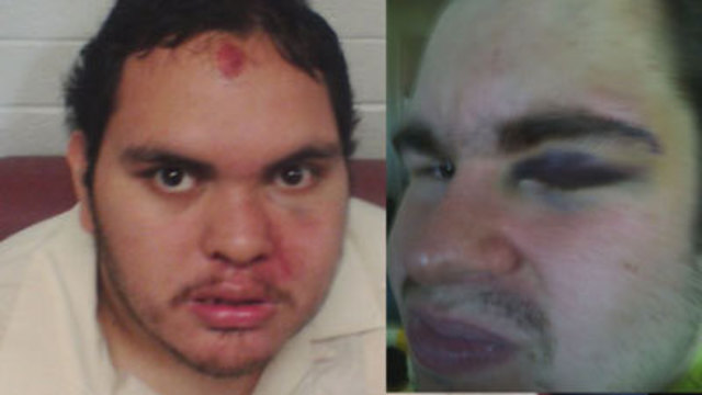 I-Team: Disabled Men Forced to Fight, Parents Say