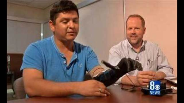 Bionic hand for soldiers