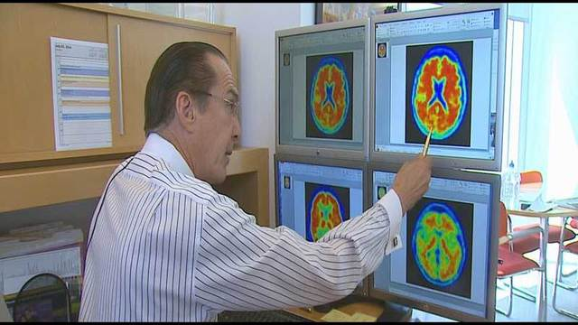 Ruvo Center: Alzheimer's study shows most drugs don't work