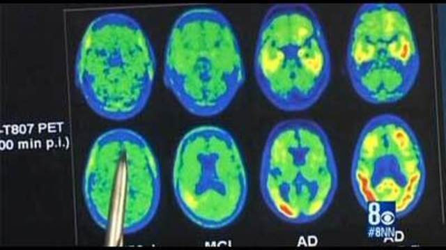 Experimental drug to prevent Alzheimer's tested