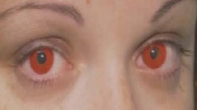Creepy Contacts Could Create Health Problems